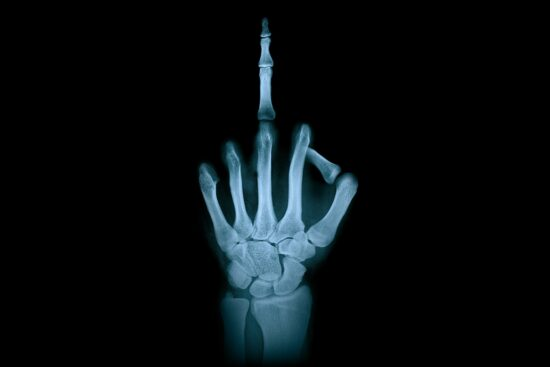 middle finger xray